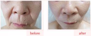 美顔骨の施術例 ビフォーアフター